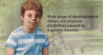 El síndrome de Down no es una enfermedad